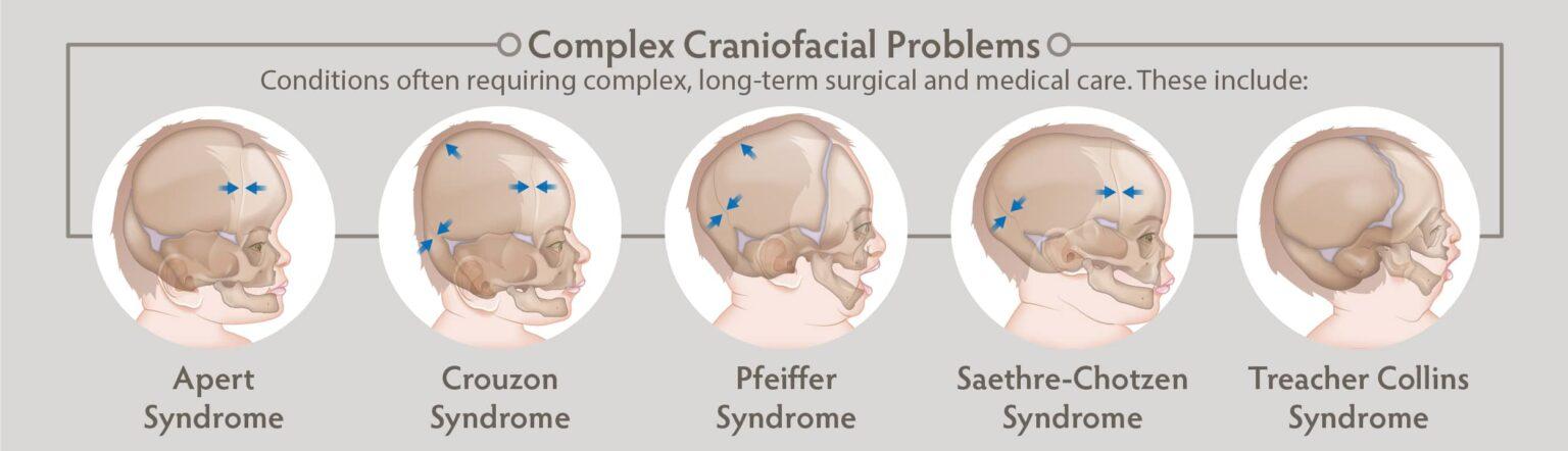 Craniofacial Surgeries